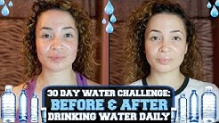 hqdefault - Pimples And Water Drinking