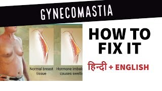 Gynecomastia - How to fix it|Hindi - Fight with Side effects (of Steroids)