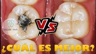 Amalgamas vs  Resinas YouTube Videos