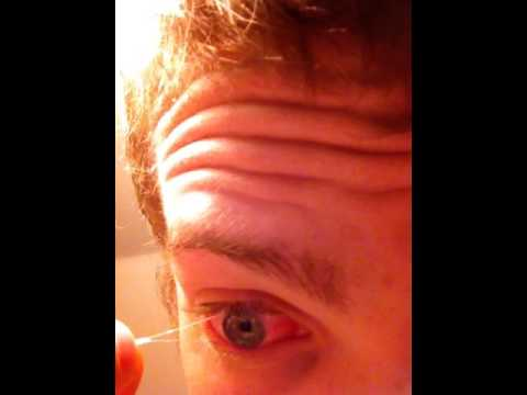 Satisfying eye gunk removal youtube for Mucus fishing syndrome