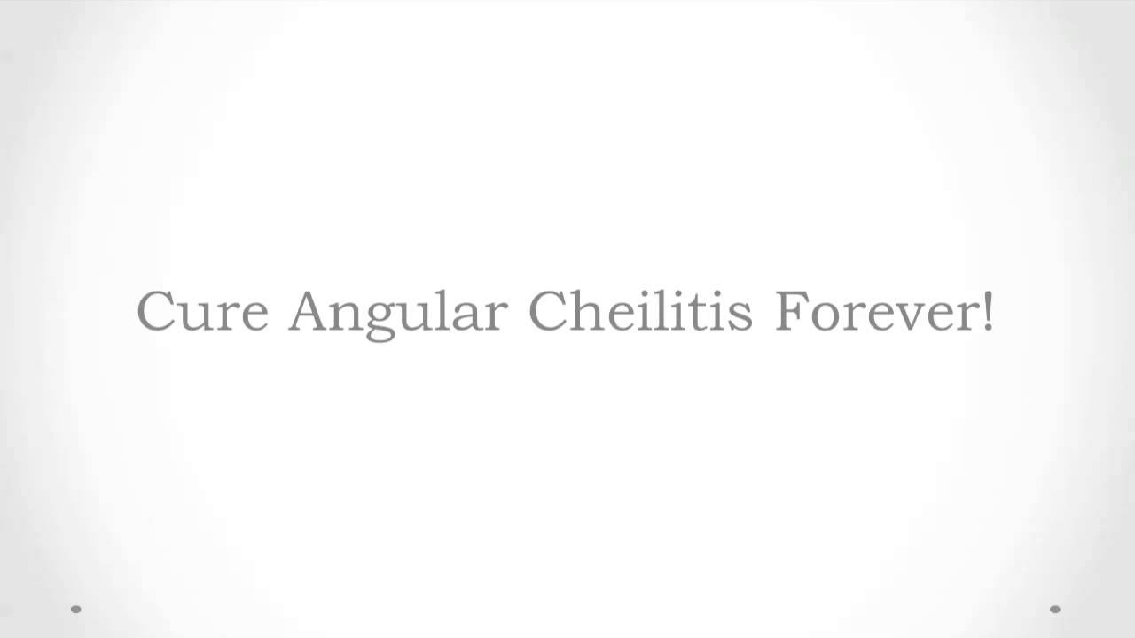 how to get rid of angular cheilitis fast