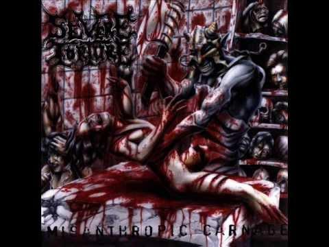 Severe Torture - Misanthropic Carnage (2002) [Full Album]