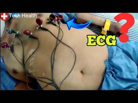 Ecg in Hindi |Ecg  signal Procedure in Hindi |ECG reading in Hindi language| Dr Gulati