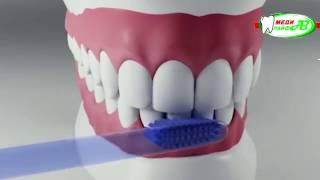 Профилактика заболеваний и лечение зубов у детей.(, 2017-03-19T14:10:55.000Z)