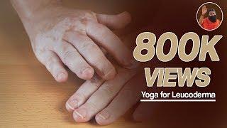 Yoga for leucoderma (सफेद दाग)   Swami Ramdev  (Part 1)