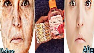 रात में 1 चम्मच लगा लो, 20 साल पुरानी झाइयां और झुर्रियां गायब | pigmentation remove wrinkles