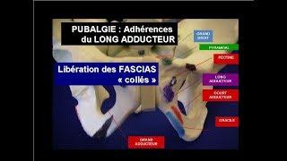 Pubalgie, adhérences Long Adducteur: traitement osteopathie, adhésiolyse manuelle