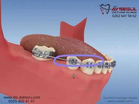 Mini implantlarla molar mezializasyonu (dişin öne doğru çekilmesi)