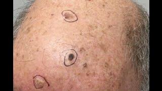 Scalp Lesion Cryotherapy for Cruz!