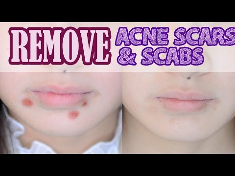 How to: Remove Acne Scars & Scabs