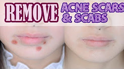 hqdefault - How To Get Rid Of Acne Scabs And Redness