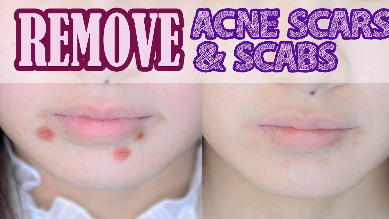 How To Remove Acne Scars Scabs Youtube