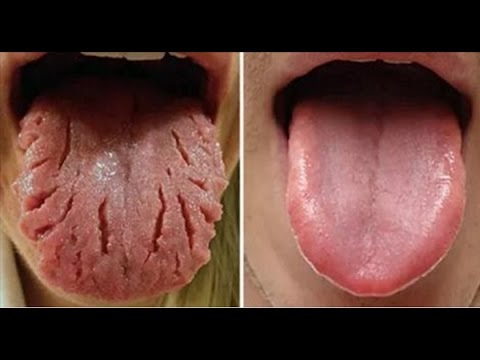 fissured tongue remedies