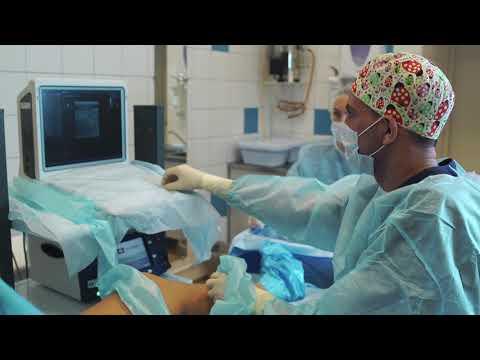 Лечение варикоза методом РЧА (радиочастотной абляции) | варикозного | расширения | расширение | варикозные | варикозное | варикозная | лечение | варикоз | болезнь | ногах