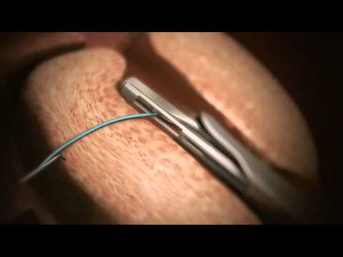 animation-of-urolift®-system-for-bhp---treatment-now-available-at-genesis-healthcare