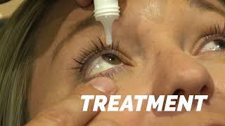 Iowa Optometry Association | TV Spot