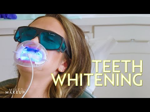 The Best Teeth Whitening in Los Angeles! | The SASS with Susan and Sharzad