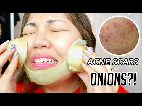 Get Rid of ACNE SCARS with ONIONS!
