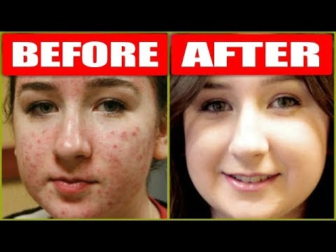 How To Remove Pimples Overnight With Just 1 Product /  Acne Treatment / RABIA SKIN CARE
