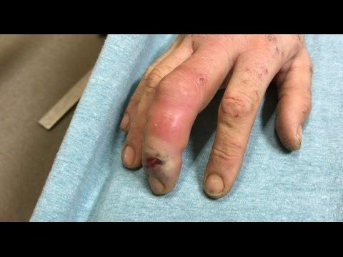Dog Bite Swelling Finger