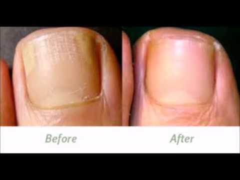 apple-cider-vinegar-for-toenail-fungus-key-pro-reviews