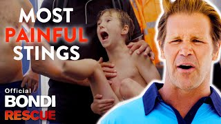 Most PAINFUL Blue Bottle Jellyfish Stings on Bondi Rescue
