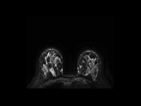 Diffusion weighted MRI of the breast at 3.0 Tesla.