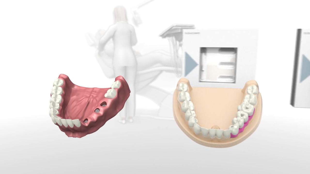 Elos Accurate®Scan Body - Elos Medtech Dental