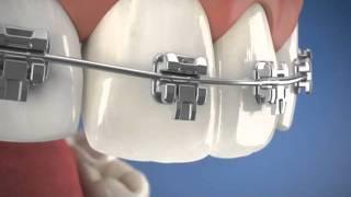 Adult braces sydney castle hill call Multicare Dental Castle Hill 02 9659 1200