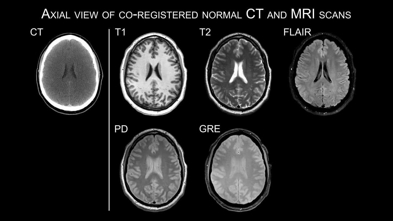 axial view of co-registered normal ct and mri scans - youtube, Powerpoint templates