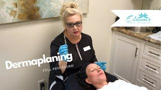 Dermaplaning |  Exfoliate, Remove Peach Fuzz, and Glow!
