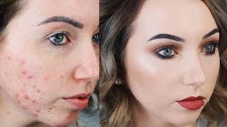 updated acne coverage foundation routine drugstore full coverage