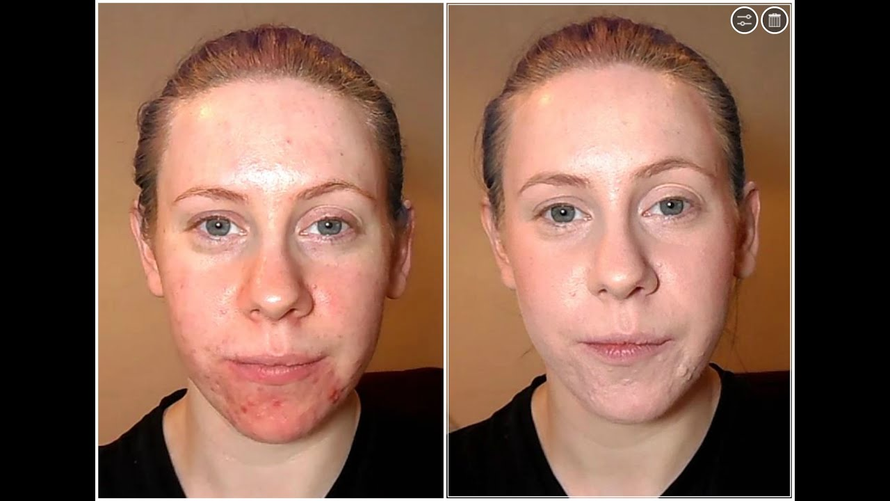 Coverage Foundation Routine Perfect Acne Dry