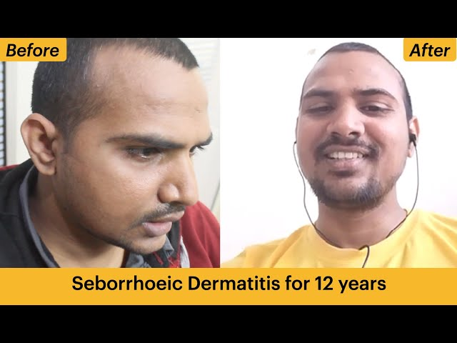 Seborrhoeic Dermatitis For 12 years getting cured with homeopathy