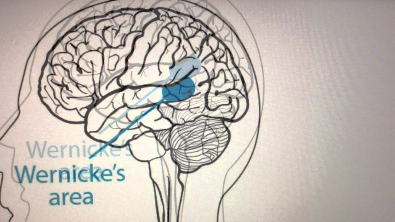 """wernicke's aphasia Wernicke's aphasia wernicke's aphasia background aphasia can be defined as a disorder that is caused by damage to parts of the brain that are responsible for language (""""aphasia"""" np) wernicke's aphasia is a type of fluent aphasia (with the other type being nonfluent."""