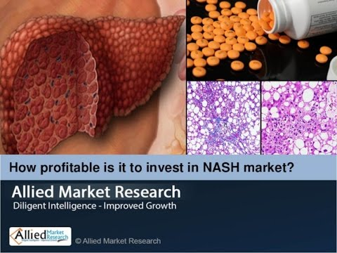 Nonalcoholic Steatohepatitis (NASH) Market – The Industry Set to Grow Positively