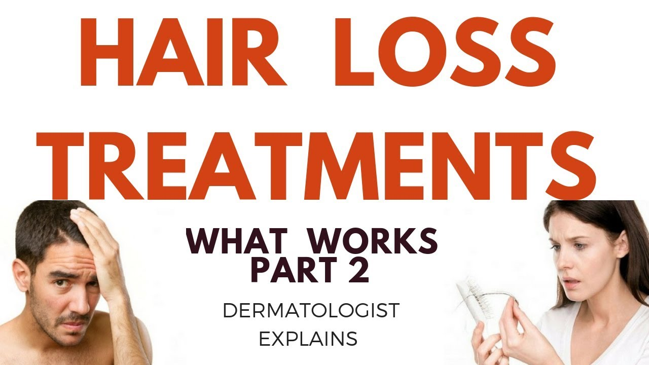 How to treat HAIR LOSS- Part 2