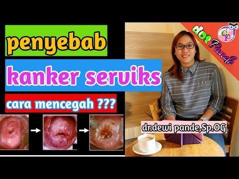 Penyebab Kanker Serviks/Cara Mencegah Kanker Mulut Rahim/Human Papilloma Virus (HPV)/Dot Pande