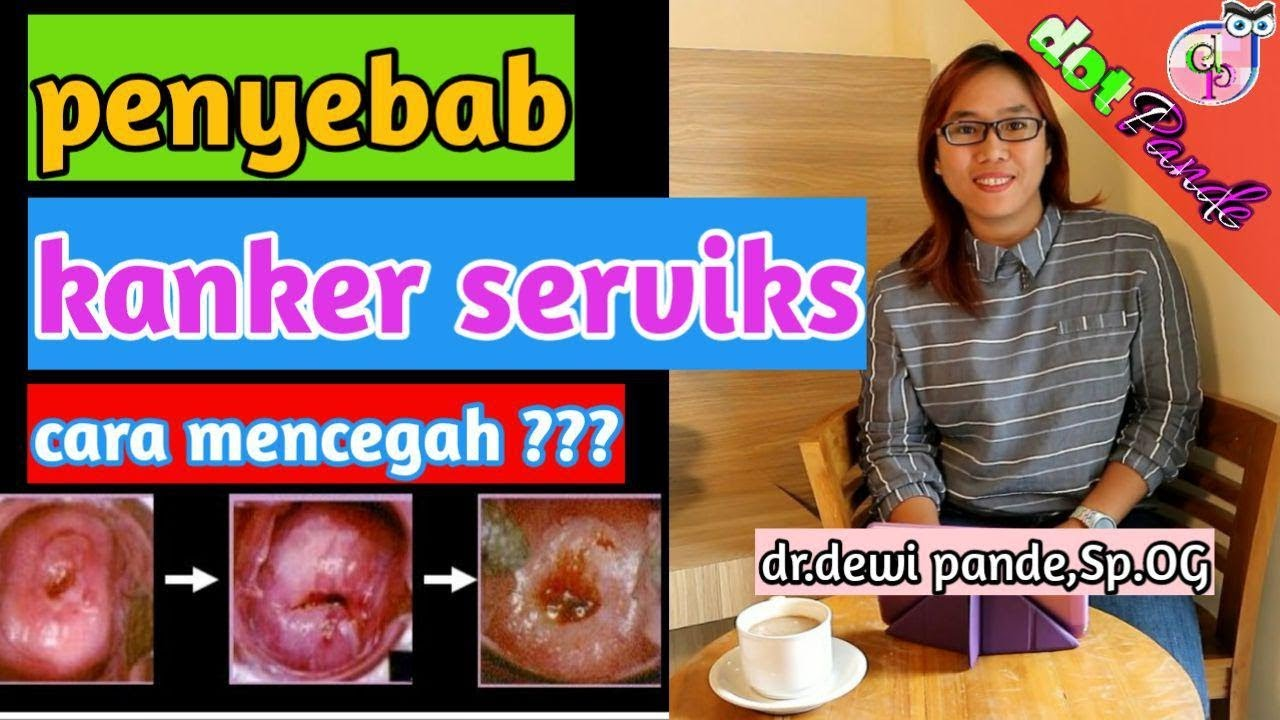 Penyebab Kanker Serviks/Cara Mencegah Kanker Mulut Rahim ...
