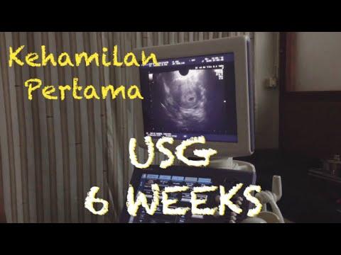 Kehamilan Pertama Usg 6 Minggu 1 Bulan Di Diagnosa Hamil Kosong Youtube