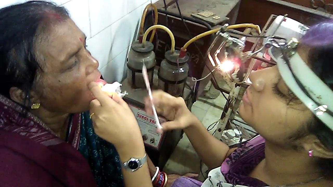 Leucophlakia treatment at Cuttack Medical College, Cuttack,odisha