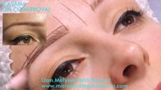 Microblading Kaş Uygulaması Uzm.Mehmet Fatih Bozkurt