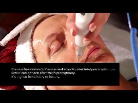 Jett Plasma Lift – New technology for Skin Rejuvenation