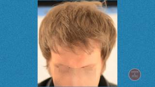 Dr. Wong Hair Transplant Results, 3711 Grafts, 1 Session. hassonandwong.com