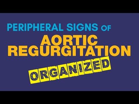Peripheral Signs in Aortic Regurgitation Makes Diagnosis Easy