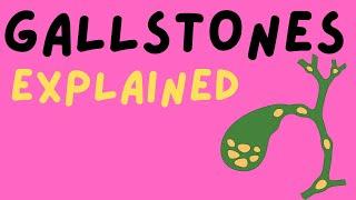 Disorder: Gallstones (Cholelithiasis) - Information, Causes, Diet