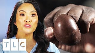 Dr. Sandra Lee Inspects Ginormous Mass On Man's Finger | Dr. Pimple Popper