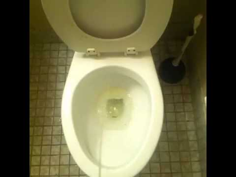 It hurts when I pee