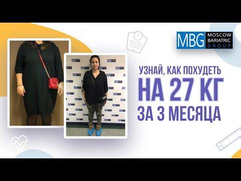Минус 27 кг за 3 месяца | Отзыв после уменьшения желудка