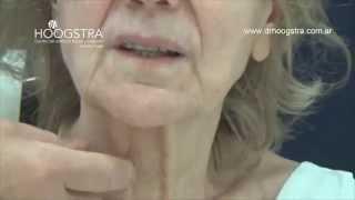 Lifting de cara y cuello en paciente de 70 años (14095)